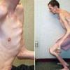 Синдром марфана - причины, симптомы, лечение