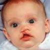 Синдром патау - причины прогноз, лечение