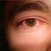 Синдром сухого глаза - причины, симптомы, лечение
