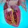 Синдром вольфа-паркинсона-уайта (синдром wpw): причины, лечение