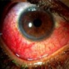 Синдром жильбера - причины, симптомы, лечение