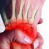 Синдром зудека: причины, симптомы, лечение