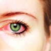 Способы лечения коньюктивита глаз