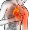 Стенокардия: симптомы