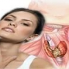 Тиреотоксикоз - причины, симптомы и лечение