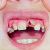 Травмы зубов