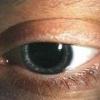 Трихиаз: причины, симптомы, лечение