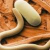 Трихинеллез - причины, симптомы и лечение