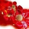 Тромбоцитопения: причины, симптомы, лечение