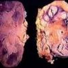Туберкулез почек: причины, симптомы, лечение