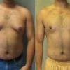 У мужчины выросла грудь – причины, симптомы, лечение