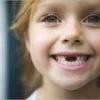 У ребенка не выпадают молочные зубы – причины