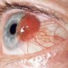Увеальная меланома или рак глаза: как определить и лечить