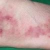 Узелковый периартериит: причины, симптомы, лечение