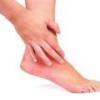 Ужасно болит голеностопный сустав, что делать?