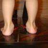 Вальгусная плоскостопия у детей: причины и лечение