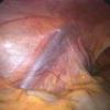 Варикоцеле – причины, симптомы, отзывы