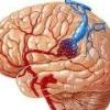 Венозная ангиома мозга (мозжечка, лобной доли)