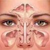 Верхнечелюстной синусит: острый и хронический