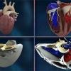 Во франции впервые имплантировали искусственное сердце