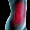 Воспаление брюшной полости, симптомы и лечение