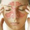 Воспаление гайморовых пазух: симптомы, лечение
