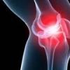 Воспаление коленного сустава, причины, симптомы и лечение