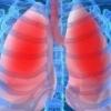 Воспаление легких у взрослых: симптомы, лечение