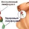 Воспаление лимфоузлов на шее, симптомы, лечение