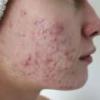 Воспаление мягких тканей: причины, симптомы, лечение