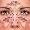 Воспаление носовых пазух, симптомы и лечение