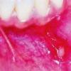 Воспаление полости рта: причины, лечение