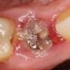 Воспаление после удаления зуба, лечение, антибиотики