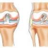 Воспаление связок, причины, симптомы и лечение