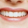 Восстановление зубов – способы возрождения эмали