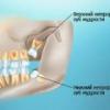 Возможные последствия при прорезывании и удалении зуба мудрости
