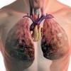 Все виды лечения туберкулеза легких