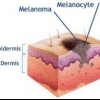 Вся правда о меланоме