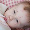 Высыпания на коже у детей, как лечить?