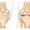 Вывих тазобедренного сустава - причины, симптомы и лечение