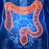 Заболевания кишечника: симптомы