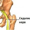 Защемление седалищного нерва при беременности