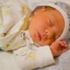 Желтушка у новорожденных детей: причины, лечение