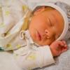 Желтушка у новорожденных: виды, причины, диагностика, лечение, последствия