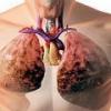 Жидкость в легких: причины, симптомы, лечение