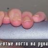 Жёлтые ногти на руках